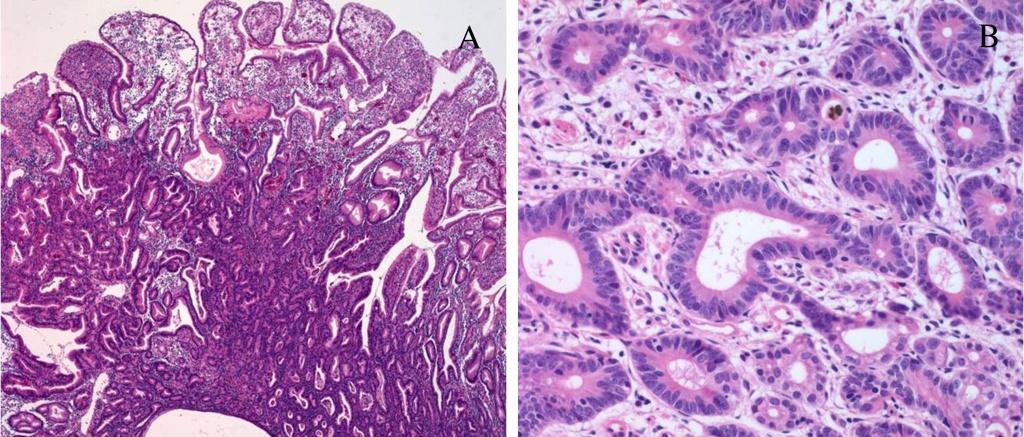 Тубулярная аденокарцинома желудка