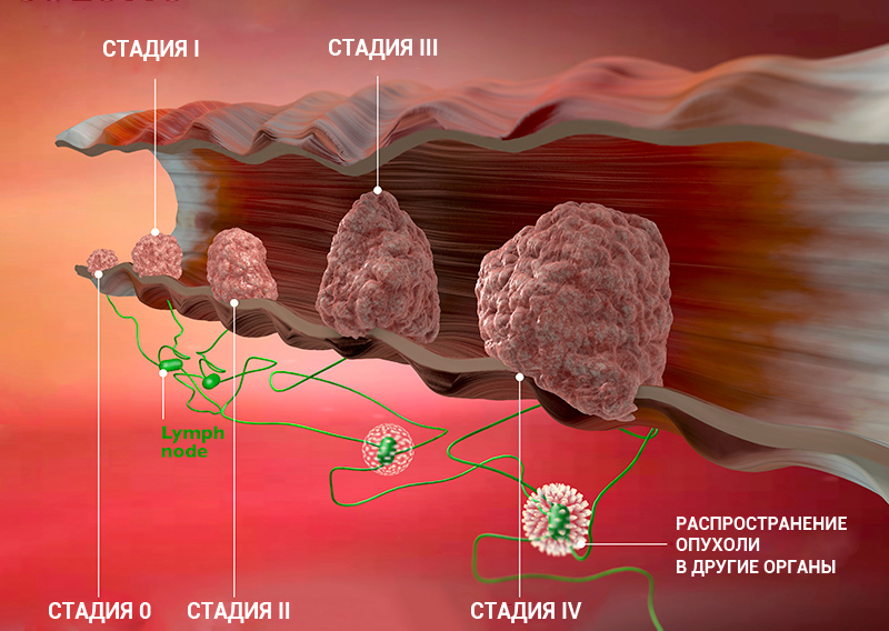 Стадия опухолевого процесса по системе тнм 6