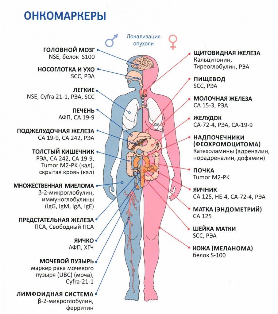 признаки онкологии кишечника онкомаркер мультфильм,девушек