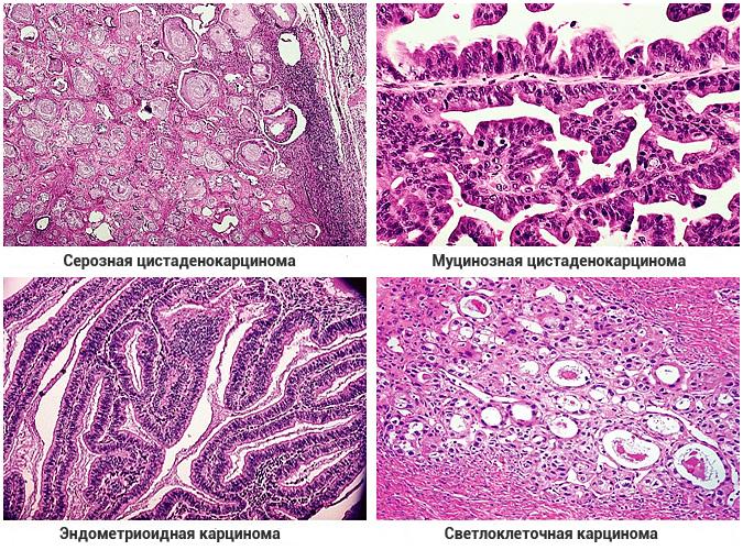 Эндометриоидная карцинома яичника 32