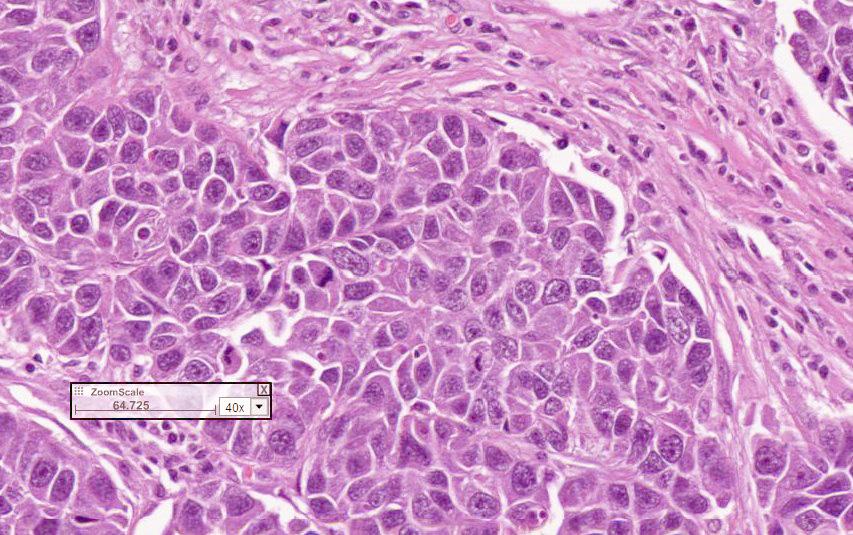 Гистологические типы рака легкого Аденокарцинома Легкого
