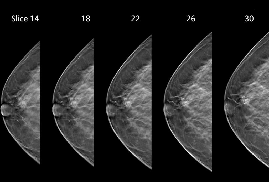 digital breast tomosynthesis versus digital mammography